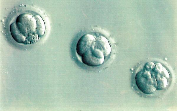 embryo donation,adoption in bangalore
